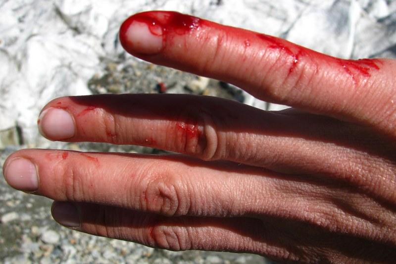 i polała się krew...